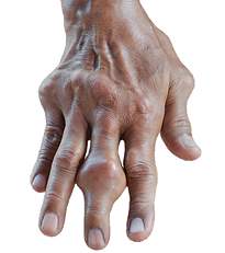 Photo showing a Hand of a five days gout program patient with a very large gout tophi on the middle finger.