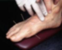 acupuncture gout treatment