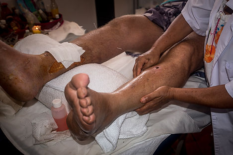 Hortensia performing lymphatic drainage on a gout patient
