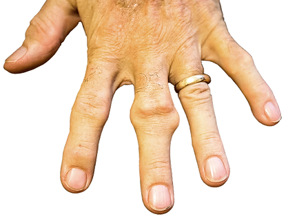 Photo showing a Hand of a ten days gout program patient with a gout tophi on the middle finger.