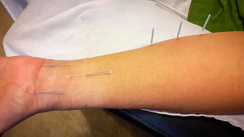 A combination of Distal Needling Acupuncture and Master Tung Acupuncture for treating Gout