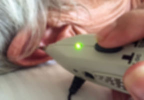 Electro stimulation is used for efficient gout Auriculotherapy