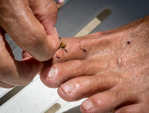 Applying bee sting on the liver acupuncture points on the foot of a gout patient
