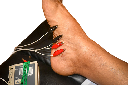 Electro-Acupuncture Gout Treatment on Tung points on the foot