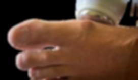one mega hertz ultrasound gout treatment