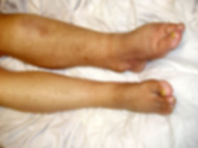 Gout Patient with serious edema on his left leg and foot