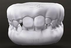 dentição mista crianças.jpg