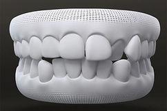 alinhamento dentes.jpg
