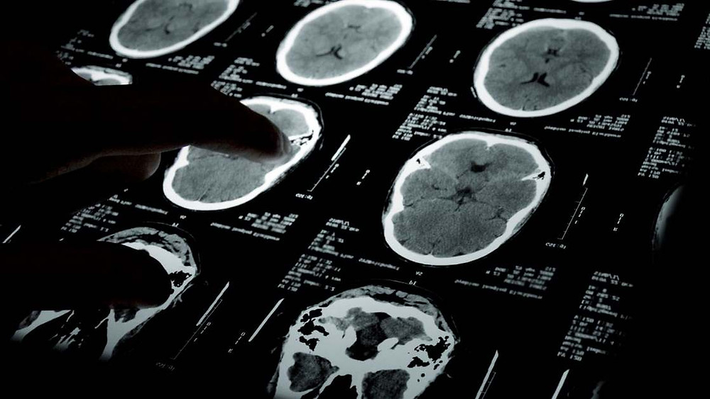choline brain development