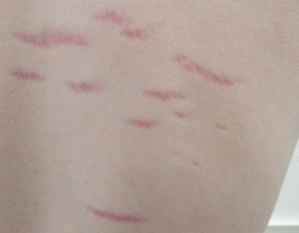 stretch mark signs