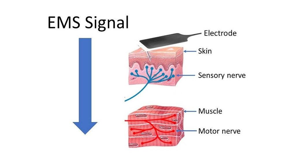 how ems works