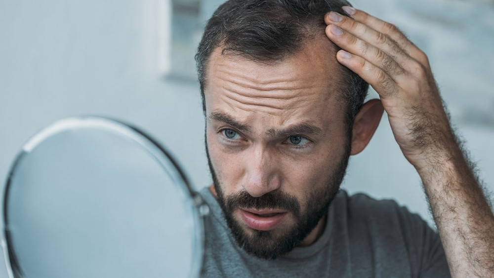 creatine hair loss and baldness