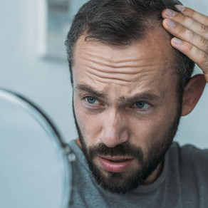 Does Creatine Cause Hair Loss? [Complete Guide]