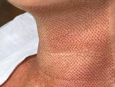 Você tem flacidez de pele na papada?