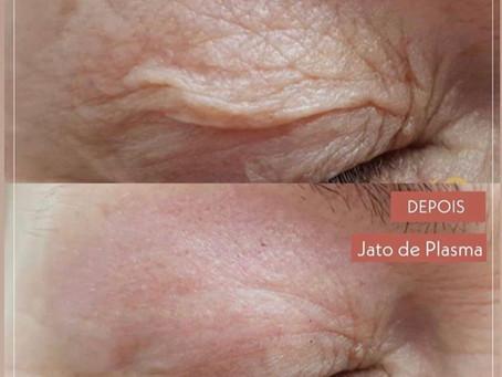 Resultado do jato de plasma no excesso de pele das pálpebras!
