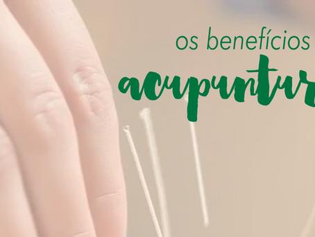 Você conhece os benefícios da acupuntura?
