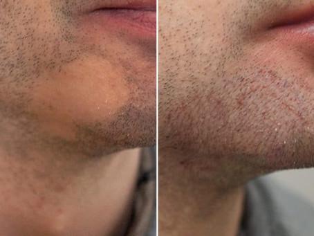Transplante de barba: conheça o procedimento que vem crescendo entre o público masculino