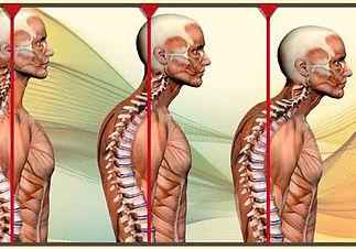 postural_distortions.jpg