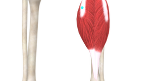 TRIGGER POINT OF THE WEEK – GASTROCNEMIUS