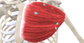 TRIGGER POINT OF THE WEEK – PECTORALIS MAJOR TP