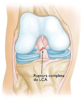 lesão LCA.jpg