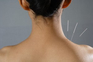 acupuntura-cervical.jpg