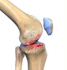 artrose no joelho.jpg