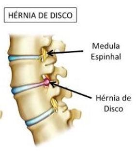 hérnia_de_disco.jpg