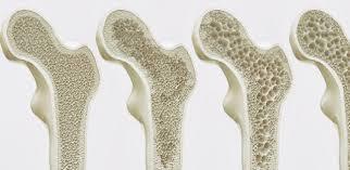 20 de Outubro – Dia Mundial e Nacional da Osteoporose