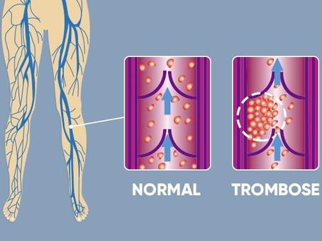 13 de Outubro Dia Mundial da Trombose