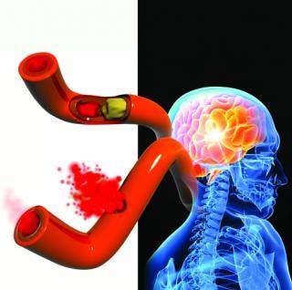 29 de Outubro Dia Mundial do Acidente vascular cerebral (AVC)