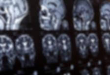 INEP - neurochirurgie