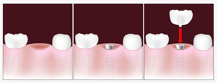 dentalimplantguide.jpg