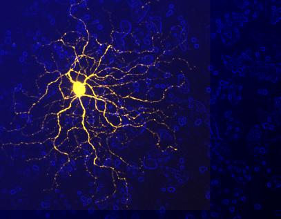 yellowneuron