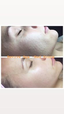 Customized Facial Care