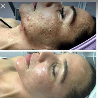 Customized Facial Peels