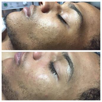 Mens Cleanse Facial