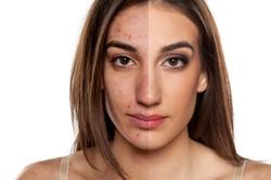 Skin rejuvenation and acne Treatment