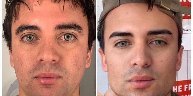 Facial Harmonisation