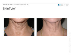 SkinTyte B&A Nov'17_Page_03