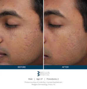 skinpen-male-before-after-1-800x810-2-29