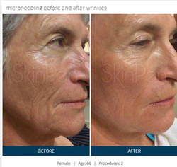 SkinPen-microneedling-before-and-after-p