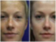 BBL-Facial-thumb-BA4.jpg