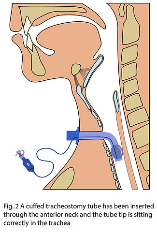 Tracheostomy tube in situ fig 2.jpg