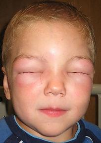 angioedema around eyes..jpg