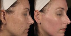 Acne Scars and Melasma