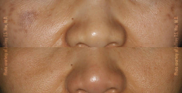 Pigmentation, Brown Spots