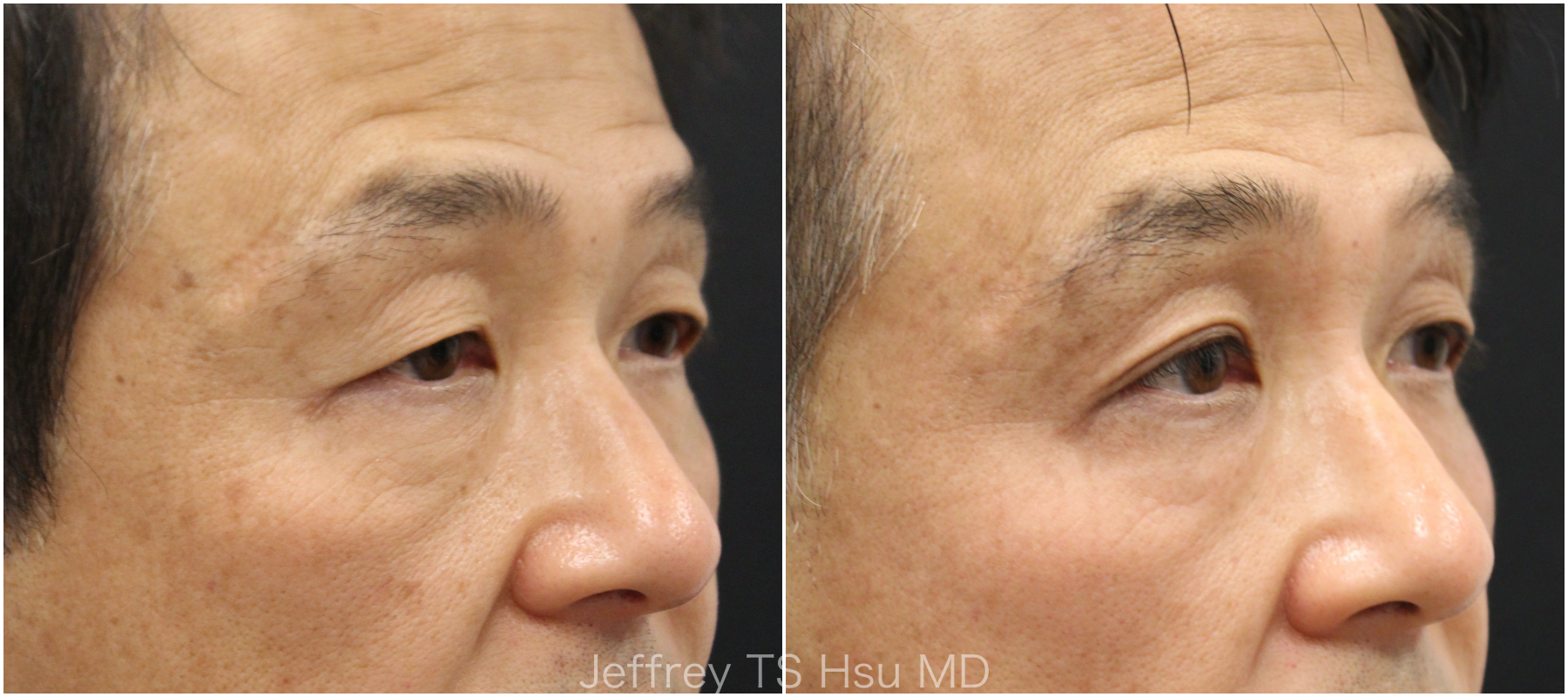 Nonsurgical Eye Lift