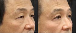 Nonsurgical Eye Lift