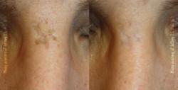 Pigmentation, Scar